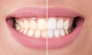 Bleaching Vorher Nachher - So wirkt die Zahnaufhellung