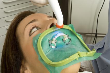 Das Power Bleaching bzw In Office Bleaching ist eine beliebte Methode zur Zahnaufhellung