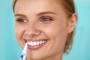 Der Whitening Pen ist eine beliebte und handliche Variante, zu die eigenen Zähne aufzuhellen