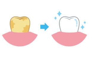 Auch einzelne Zähne können aufgehellt werden