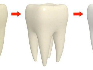 Viele Menschen wünschen sich die Aufhellung der eigenen Zähne um ein paar Nuancen - Wir geben Tipps, was gegen gelbe Zähne hilft