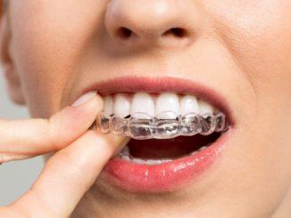 Zähne selber aufhellen - Übersicht der Möglichkeiten